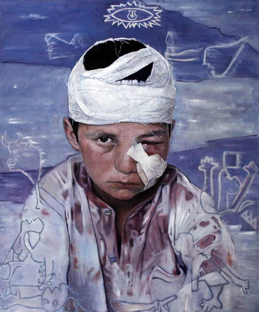 Damaged Boy James Earley Artist